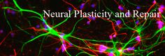 Neural Plasticity and Repair - Research - Stanford Institute for Neuro-Innovation & Translational Neurosciences - Stanford Medicine