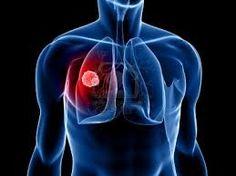 SEGUROS PRIZA te dice. El cáncer de pulmón es una de las formas más comunes de cáncer, siendo el tabaquismo el principal detonante de esta enfermedad en cerca del 71% de los casos, según cifras de la Organización Mundial de la Salud. Aquellas personas que fuman, que están expuestas a carcinógenos como el amianto o el arsénico, a determinados minerales nocivos o que cuentan con casos de cáncer de pulmón en familiares directos, son más propensos a padecer esta enfermedad.