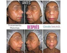 Claudia Toro MD | Estéticas, Medicina estética Bogotá Facial, Medicine, Unwanted Hair, Radio Frequency, Facial Treatment, Facial Care, Face Care, Face