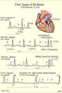 Four types of AV Block Nurses, nursing