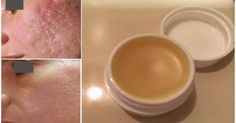 Unique Homemade Cream To Gets Rid of Scars Completely Within 2 Weeks!