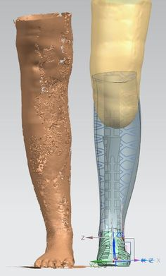 There's a Lot More to Natasha's 3D Printed Leg #3dprinting