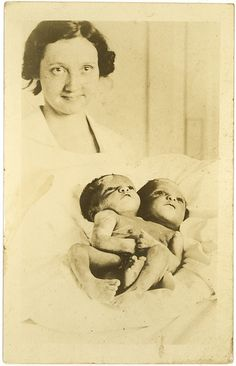 early 20th century conjoined twins photo