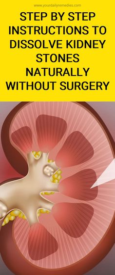 Step By Step Instructions To Dissolve Kidney Stones Naturally Without Surgery Natural Remedies Sore Throat, Natural Remedies For Heartburn, Cold Home Remedies, Cough Remedies, Natural Cures, Herbal Remedies, Natural Skin, Coldsore Remedies Quick, Herbal Cure