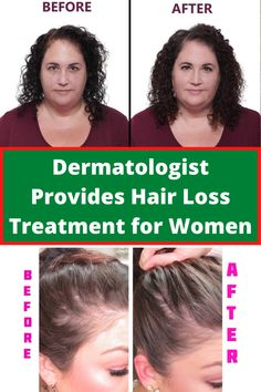 Next to gaining or losing weight, the hair falling out is probably one of the biggest concerns any individual can have about their personal appearance. If this is happening to you however, don't panic.#hair_loss_women #hair_loss_women_treatment #hair_loss #hair_falling_out #hair_falling_out_after_pregnancy #hair_falling #hair_fall_2020_trends Pregnancy Hair, Underactive Thyroid, Hair Falling Out, Hair Loss Women, Hair Starting, Hair Strand, Hair Loss Treatment, Dr Oz, Grow Hair