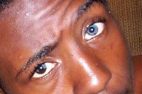 Why do I have blue-eyes? I am an African-American. I am 37 now, it's always been a shock to many. I was born with natural blue-eyes. I am not light skinned at all; I am a brown skinned woman. People are amazed that they are blue just like how white people's eyes are. I have a 15 year old and he has one total blue-eye, (the right eye) and the other eye is half brown and blue, weird right?