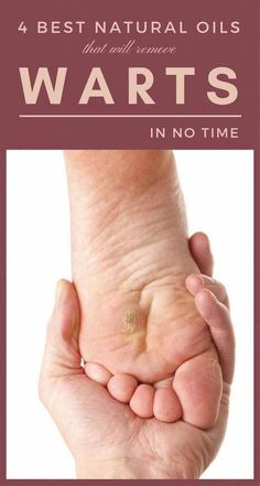 Learn how to Remove Warts Naturally #TypesOfSkinWarts #CanWartsBeRemoved #CanYouRemoveSkinTags #BestWayToRemoveWartsOnFace #SkinWartsNeck #WartsOnHands Foot Warts, Warts On Hands, Warts On Face, What Are Warts, What Causes Warts, Home Remedies For Warts, Cold Home Remedies, Herbal Remedies, Warts Remedy
