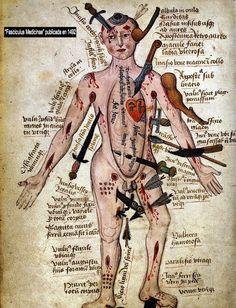 """El daño y su solución.    Aparecidos en la Edad Media en la monumental """"Fasciculus Medicinae"""" publicada en 1492 por Johannes de Ketham, las ilustraciones conocidas con el nombre de Wound Man (o manuales del hombre herido) representaban a hombres lesionados en distintas partes del cuerpo por armas de toda índole, y procedían a indicar las distintas complicaciones que podían llegar a surgir en cada región dependiendo del tipo de herida y las partes afectadas del cuerpo."""