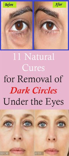 11 Natural Cures for Removal of Dark Circles Under the Eyes