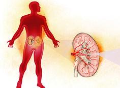 os sinais da insuficiência renal