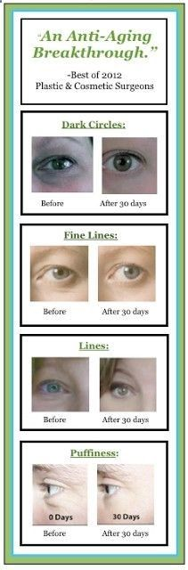 All proven effective antiaging ingredients in one product, finally