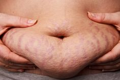 How To Use Vicks VapoRub To Get Rid Of Stretch Marks