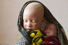 Series: Tribe of Ghosts: Inner Light - Burning in the daylight and hunted in the shadows, having albinism can be a death sentence in Tanzania. Since 2006 more than 100 people with albinism, a. We Are The World, People Of The World, Tanzania, Albino African, All About Africa, Melanism, Modern Metropolis, Afro Punk, Black History