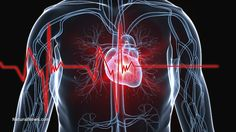 Chelation therapy and vitamin supplements cut heart disease risk by over 25%