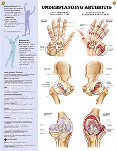 "Understanding Arthritis...increased awareness of your injury/condition will help you begin to decrease your pain...also check out the book ""Arrhritis Relief at your Fingertips"" by Michael Reed Gach..."