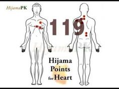 Hijama Points for Heart Disease Acupressure Therapy, Cupping Therapy, Body Therapy, Cupping Points, Acupuncture Points, Hijama Points, Meridian Massage, What Causes High Cholesterol