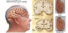 How To Recognize Early Signs Of Dementia And Prevent Memory Loss