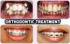 Are you looking for Dental Clinic in Kolkata? Modern Dental Unit is the best Dental Hospital in Kolkata to deal with all your dental worries. Dental Hospital, Orthodontics, Dentistry, Clinic, The Unit, Kolkata, Tooth, Greek