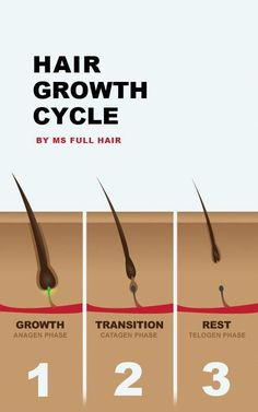 We created an image for the hair growth cycle (Anagen, Catagen and Telogen phases). Related Post: Infographic: Science of Hair Biotin For Hair Loss, Oil For Hair Loss, Anti Hair Loss, Hair Loss Shampoo, Stop Hair Loss, Biotin Hair, Hair Growth Cycle, New Hair Growth, Afro Hair Care