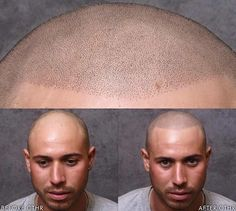 Pin for Later: How Scalp Tattoos Are Empowering Men With Hair Loss