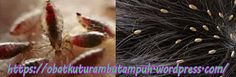 Obat kutu rambut alami yang ampuh membasmi kutu rambut. Anda merasa tidak nyaman dan tidak percaya diri dengan kutu di rambut, jagan ragu lagi segera hubungi kami via Telp/Wa di 085-747-339-168 || 0811-258-2345.  obat kutu rambut, obat kutu rambut alami, obat kutu rambut herbal, obat kutu rambut ampuh, obat kutu rambut manjur, obat kutu rambut tradisional, obat kutu rambut di apotik, obat kutu rambut cepat hilang, obat kutu rambut anak, cara mengatasi kutu rambut, cara menghilangkan kutu ram