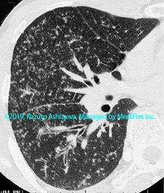 11. その他の肺疾患 症例098:サルコイドーシス CT,『コンパクトX線アトラスBasic 胸部単純X線写真アトラス vol.1 肺』 Radiology