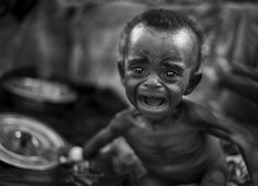 Somalia.  This picture is heart-breaking