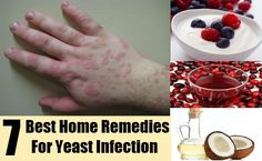 DIY Find Home Remedies - http://www.homeremedyfind.com/best-home-remedies-for-yeast-infection/