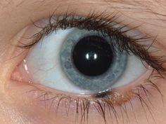 Eye Tumors