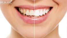 Sugar Land Dental Spa offers zoom teeth whitening treatment by experienced and qualified dentist for your better and perfect smile in Sugar land, TX. Book an appointment for teeth whitening service near your location in Texas. Zoom Teeth Whitening, Teeth Whitening Methods, Charcoal Teeth Whitening, Smile Care, Dental Check Up, Dental Aesthetics, Dentist Near Me, Dental Veneers, Teeth Bleaching