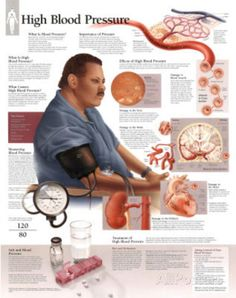 blood+pressure+chart | Laminated High Blood Pressure Educational Chart Poster Laminated ...
