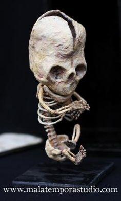 Anatomy of a midget