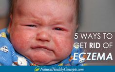 5 Natural Ways to Treat Eczema