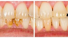 Photo about Before and after dental plaque removal treatment. Plaque Removal, Dentistry, Macaroni And Cheese, Dental, Garlic, Vegetables, Ethnic Recipes, Food, Treatment