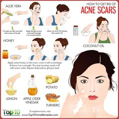 How to get rid of red acne scars overnight or in the shortest time possible? There are easy and effective natural acne scar removal methods for you to try. Scar Remedies, Natural Acne Remedies, Home Remedies For Acne, Acne Skin, Acne Scars, Oily Skin, Sensitive Skin, Scar Treatment, Skin Treatments