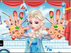 Frozen Elsa Hand Doctor - Frozen Doctor Games