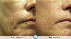 More Real Results with #NeriumAD!  Visit www.wrinkleresults.arealbreakthrough.com to learn about the science, products, business opportunity and more!
