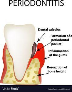 Wisdom Teeth, Calculus, Dental, Tooth, Infographics, Adobe Illustrator, Cookie Recipes, Pdf, Sugar