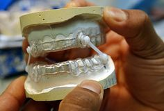 A dentist or orthodontist can fit you with a mouthpiece or oral appliance to ease mild sleep apnea. The device is custom made for you and adjusts the position of your lower jaw and tongue. You put it in at bedtime to help keep your airway open while you sleep.
