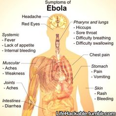 With the Ebola virus now spreading in the United States, important to know the symptoms. Pass it on.