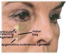 Malar Bags Beauty Tips Eyes, Beauty Hacks, Beauty Stuff, Beauty Care, Malar Bags, Skin Aesthetics, Medical Aesthetics, Facial Anatomy, Human Anatomy