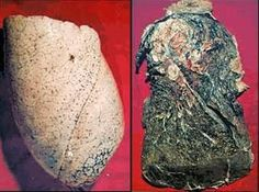 Healthy Lung and Lung from a dead smoker.