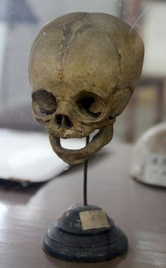 Fetal Skull 2 by Curious Expeditions
