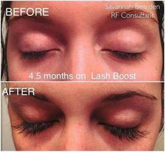 Lashboost is AMAZING! Check out Savannah's 4.5 month results using Lash Boost! And no, she isn't wearing mascara in EITHER picture.  Don't forget Tomorrow is the LAST DAY for the Lash bundle SALE:Bundle Lashboost + ANY regimen of your choice for 20% off!! Plus, become a PC & receive an ADDITIONAL 10% off (That's almost 30% off!) I'm personally am offering $20 Cash back to new PC's & a free gift from me! Wondering if these products would work for you? TRY IT & find out with their 60 – day…