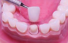 Có nên bọc răng sứ cho răng thưa hay không? 1