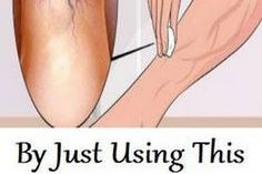 BY JUST USING THIS INGREDIENT, YOU WILL BE ABLE TO ELIMINATE THE VARICOSE VEINS FOREVER!