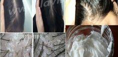 Elle A Utilisé Cet Ingrédient Et A Obtenu Des Cheveux Epais Dans 7 Jours