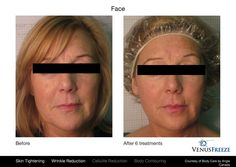 After 6 #VenusFreeze treatments, you'll not only feel fabulous, but you'll also be able to keep them guessing about how old you really are. It can happen in a matter of minutes per session, with no painful injections or recovery time! #VenusBeauty #SkinTightening #AntiAging