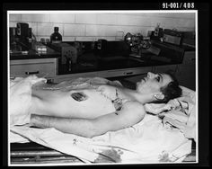 Lee Harvey Oswald in Morgue - Print