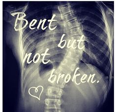 Bent but not broken <3